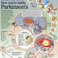 New Tool to Battle Parkinson's Disease