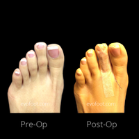 Hammertoe correction no. 2 @evofoot