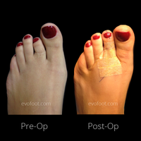 Toe reconstruction @evofoot