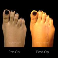Toe lengthening @evofoot
