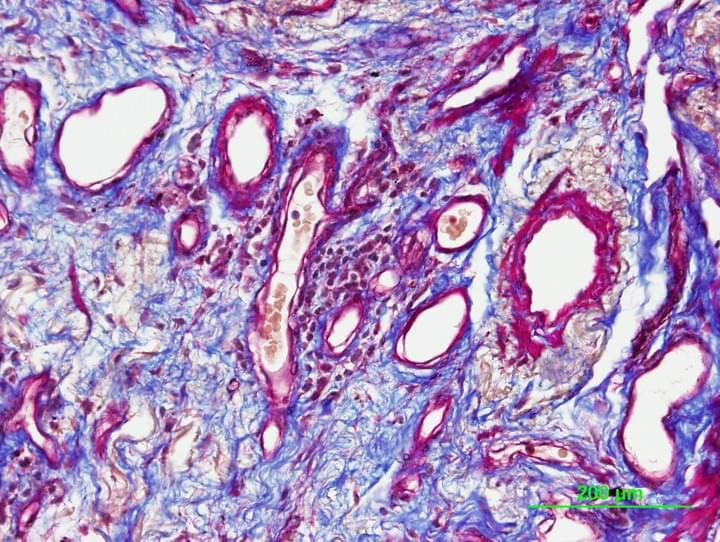 IPF Lung Fibrosis or scarring