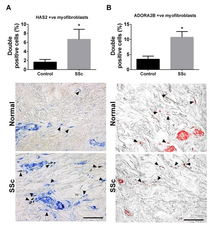 HAS2 and ADORA2B positive myofibroblasts from skin samples of control and SSc patients