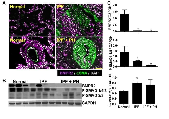 BMPR2 IPF and lung Fibrosis