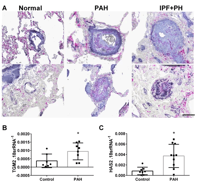 lung IHC for  TGM2 and SMA (panel A) and expression levels of tgm2 and Has2