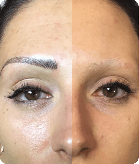 Microblading tattooing image