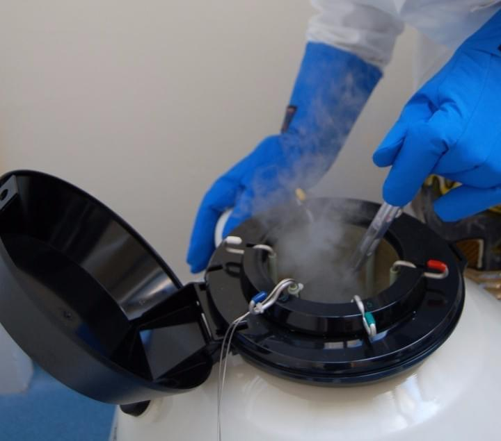 Sperm freezing, cryo storage