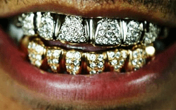 Everything about Gold Teeth Grillz