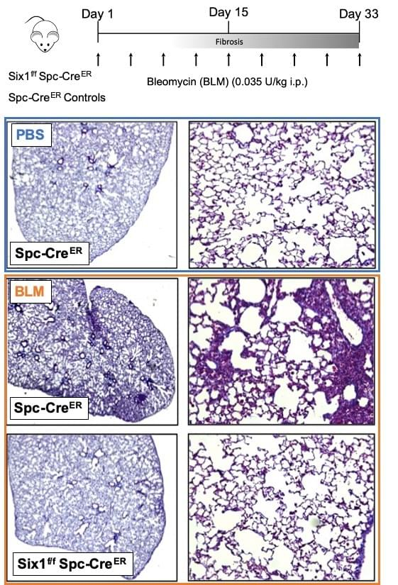 Six1 flox Spc Cre mice have protection against lung fibrosis by histology