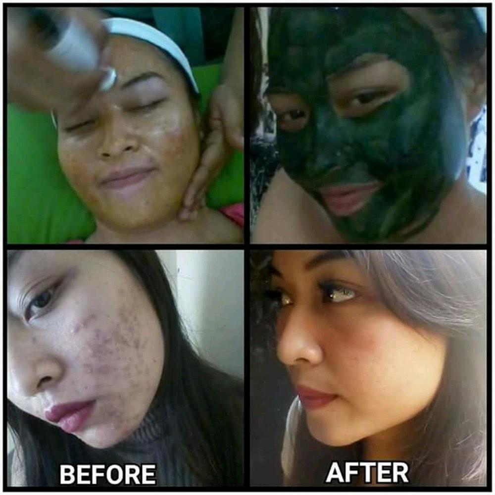 Cara Menghilangkan Jerawat Dan Bekasnya Dan Obat Masker