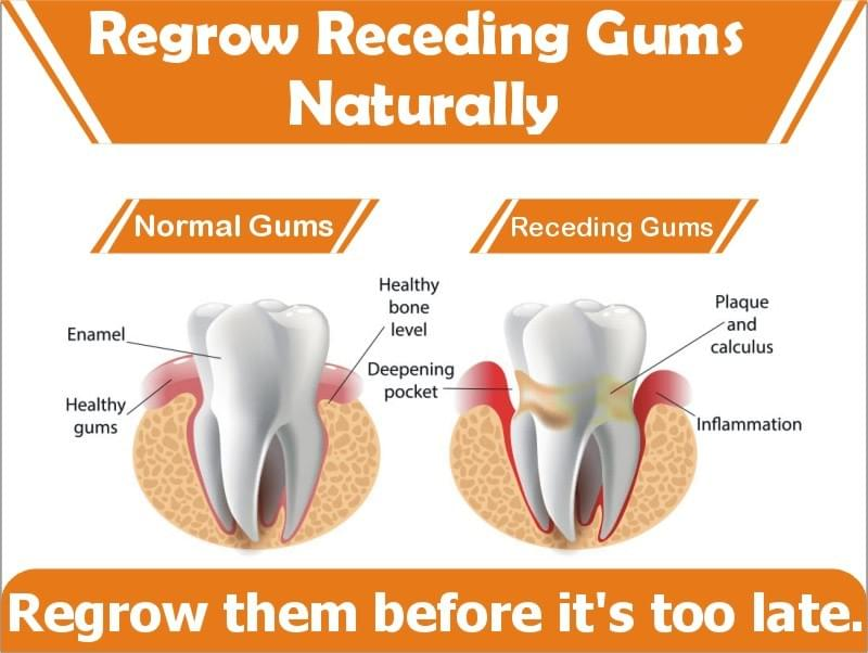 Regrowing Gum Tissue Naturally At Home