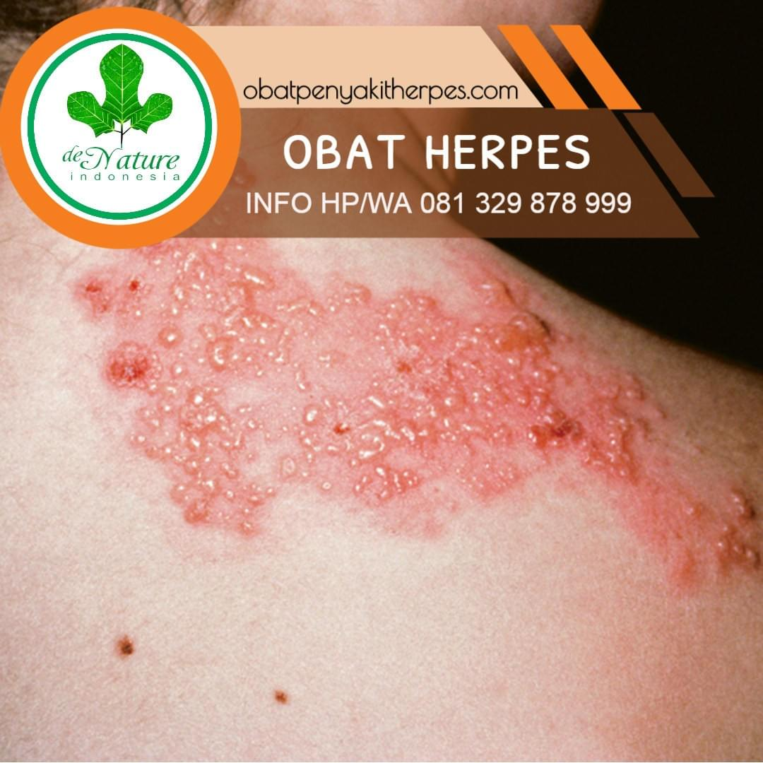 Pengobatan Tradisional Herpes Genital Obat Herpes