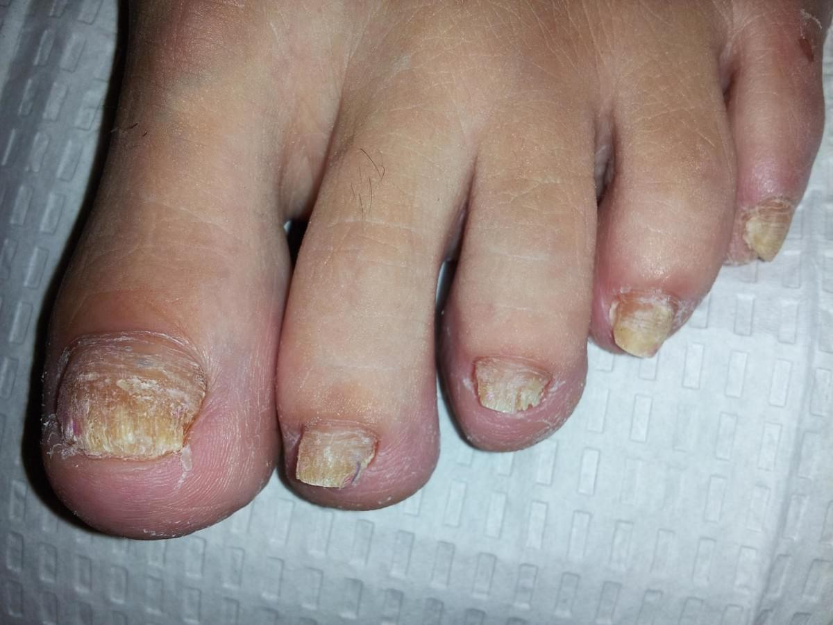 Reviews of the Different Types of Nail Fungus Products