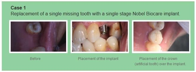 Replacement of a single missing tooth with a single stage Nobel Biocare implant.