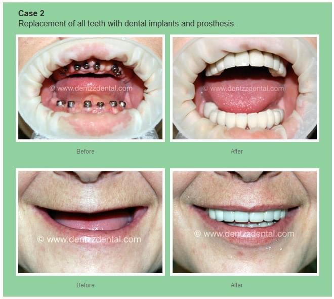 An Overview of Types of Dental Implants
