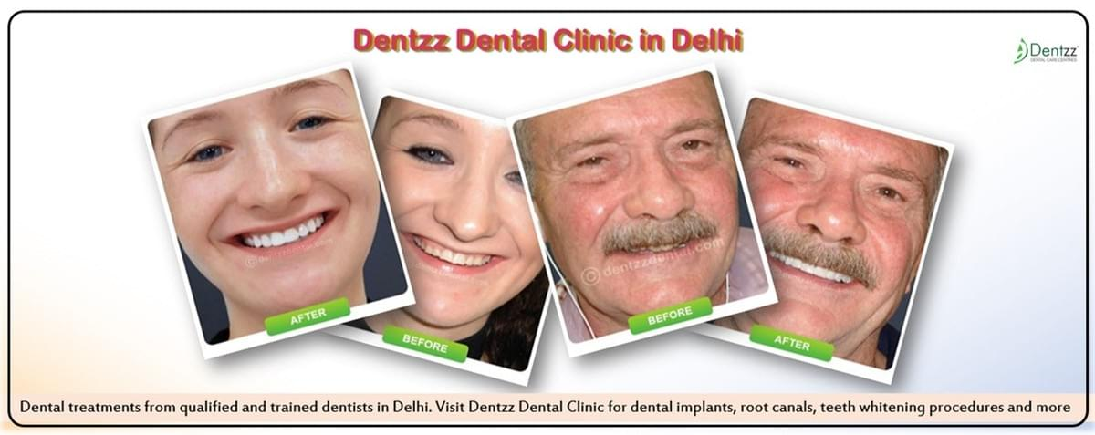 Best Dental Clinic Delhi