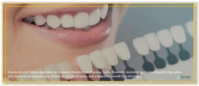 Cosmetic Dentist in Mumbai