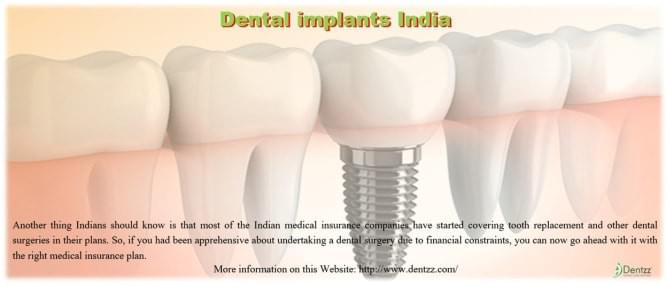Dental implants India are no longer considered a part of cosmetic dentistry.