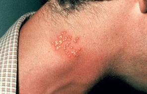 Obat Herpes Leher