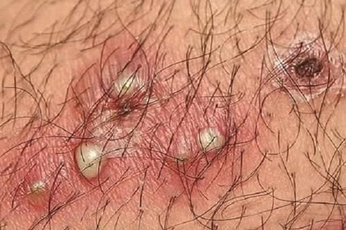 foliculita pe penis