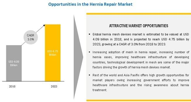 Hernia Repair Market by Product (Mesh (Synthetic, Biologic), Mesh Fixation (Suture, Tack and Glue Applicator)), Surgery Type (Inguinal, Incisional/Ventral, Umbilical, Femoral), and Geography (America, Europe, Asia Pacific) - Global Forecast to 2023