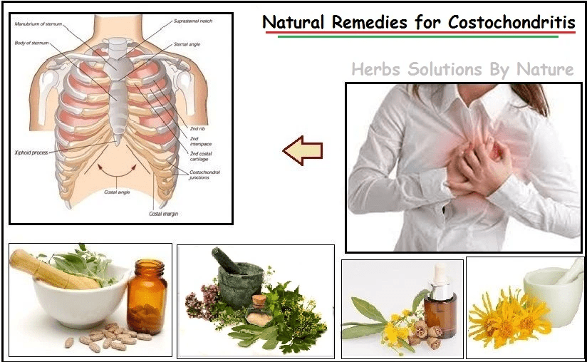 Natural Remedies for Costochondritis