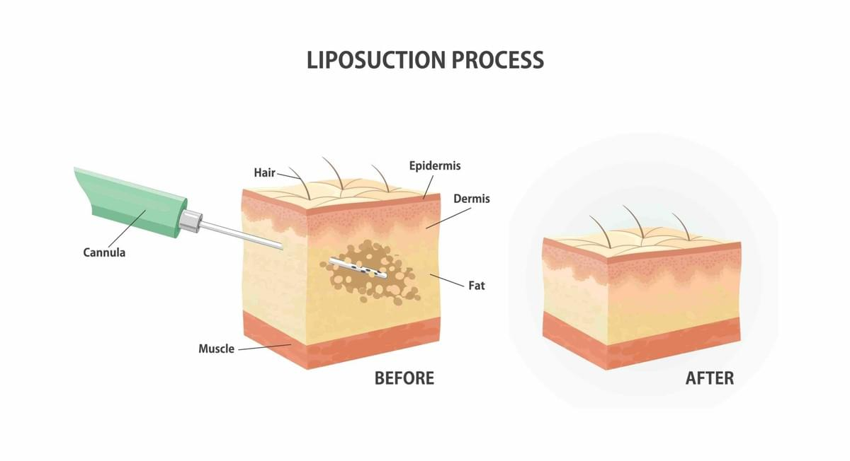 San Antonio liposuction
