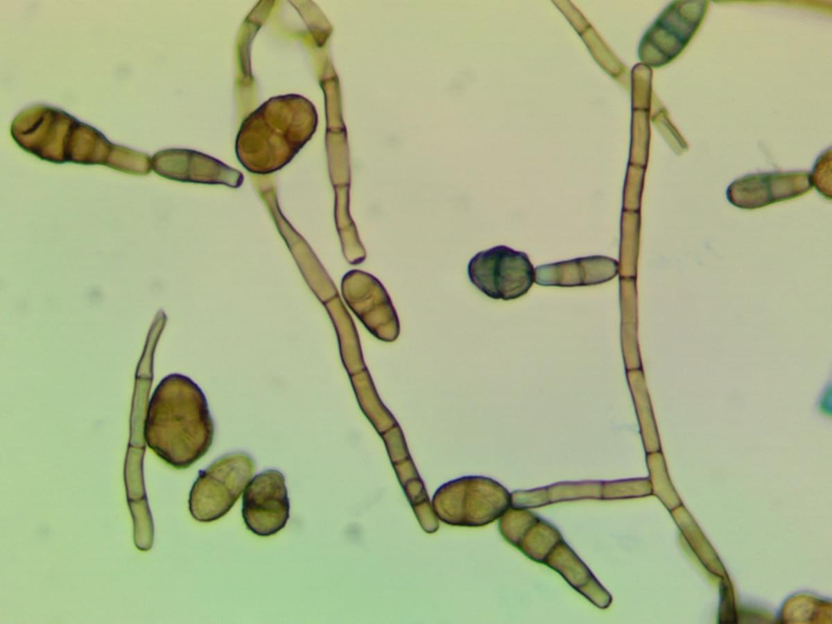 Alternaria alternata fungal spores.  Alternaria is a frequent contaminant in water damaged homes. Image courtesy of Biological Health Services.