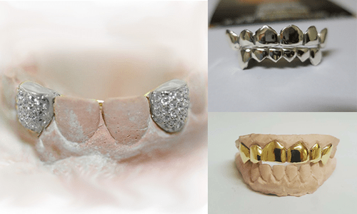 Iced Out Diamond Grillz or Gold Teeth Sets