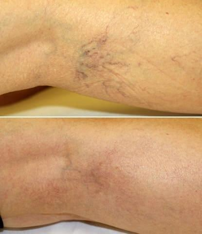 opriți perna varicoasă
