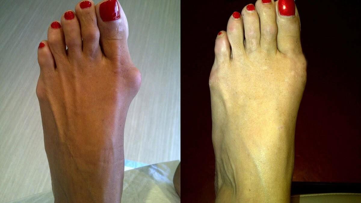 picioarele îmi dor mereu după muncă