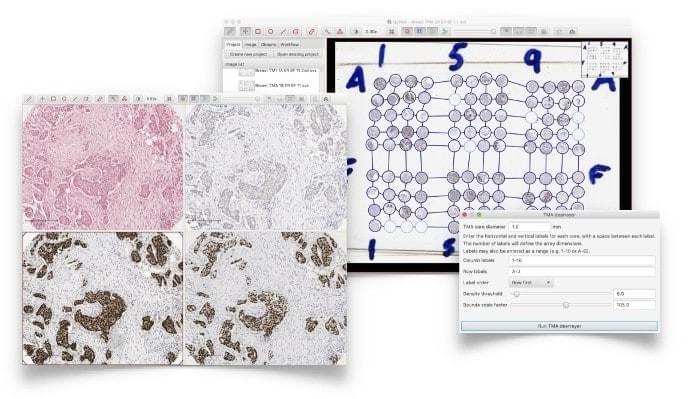Introduction to Digital Pathology using QuPath