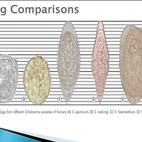 Schistosomiasis egg comparison