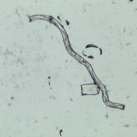 worm in urine sample
