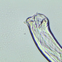 schistosomiasis worm in urine sample