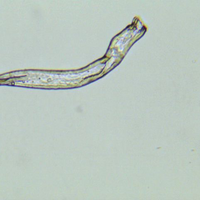 Male Schistosomiasis worm