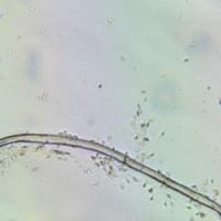 Schistosomiasis in semen sample