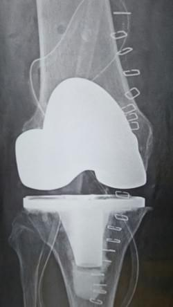 Post operative Xray of a total knee replacement