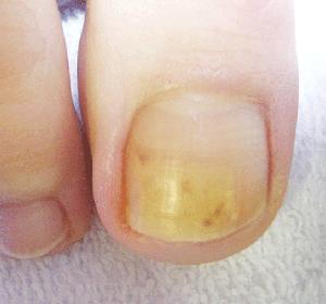 Nail Tincture/灰指甲喷雾