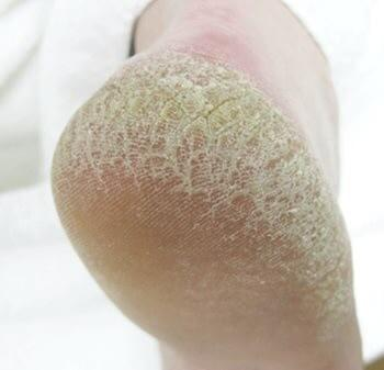 Rough Skin Formula/粗糙干燥皮肤摩斯