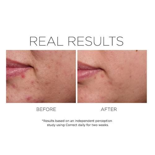 CORRECT Rapid Relief Acne Treatment
