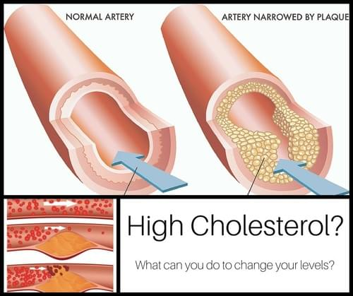 How to lower your cholesterol without (more) medication.