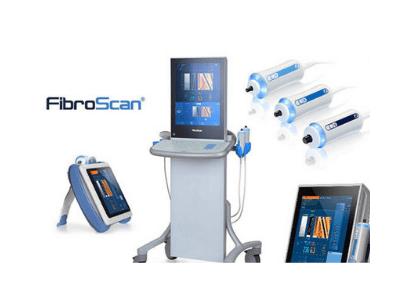 肝纖維化掃描服務 Fibro Scan (1次)