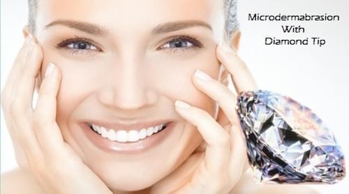 Diamond Tip Microdermabrasion
