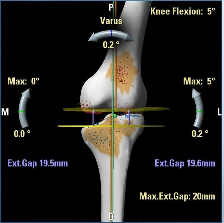 Computer assisted Knee Replacement, Nagpur
