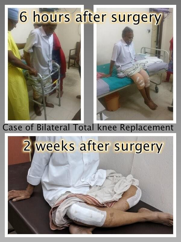 Results of computer assisted Knee Replacement, Nagpur