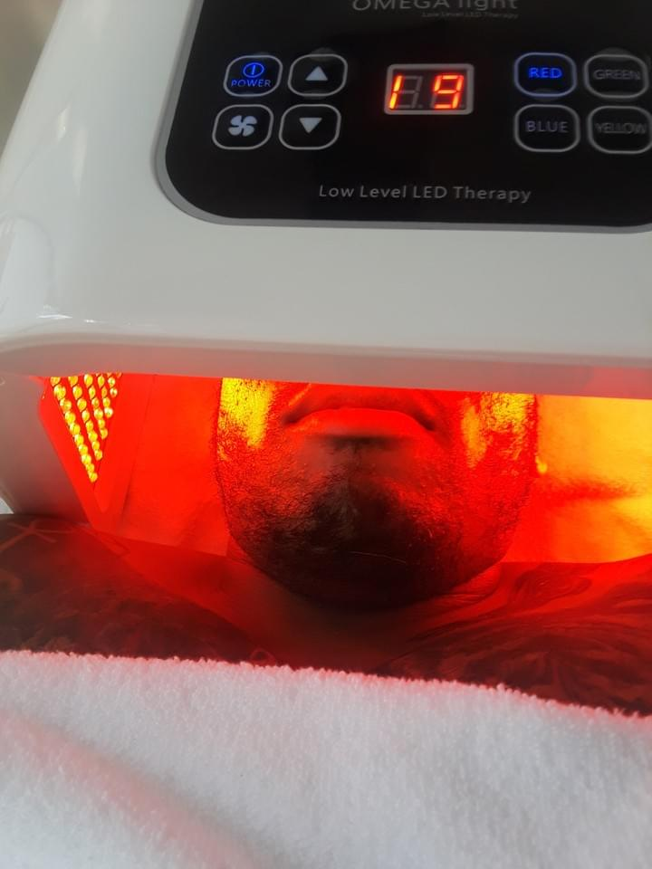 HYPERPIGMENTATION RED LIGHT THERAPY