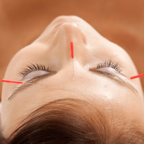 facial acupuncture - 3 needles on face viewing from top of head down