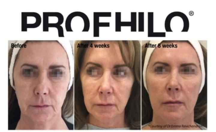 Cosmetic Perfection, Wirral Medical Spa