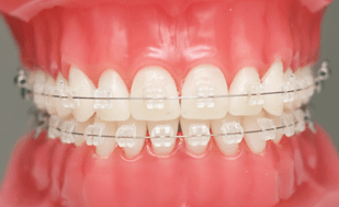 orthodontist singapore