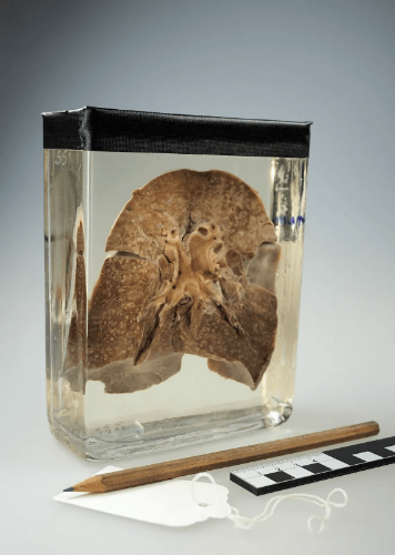 Lung specimen from 1912. Credit: Navena Widulin/Berlin Museum of Medical History at the Charité.